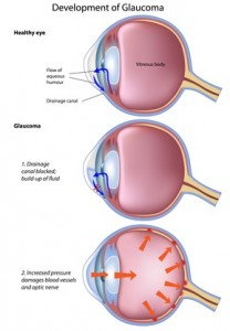 Stages of glaucoma in dogs