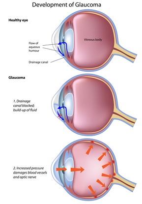 Dog Eye Glaucoma